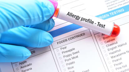 All About Allergies: Successful Diagnosis and Treatment