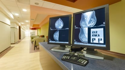 A Model for Other Breast Centers
