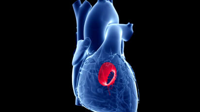 Deconstructing the Mitral Valve | Penn Medicine