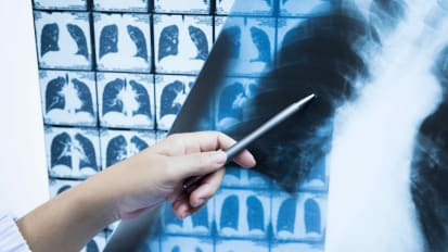 Low Dose CT Scans for High Risk Patients