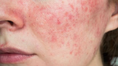 Rosacea and Treatments | What Providers Need to Know