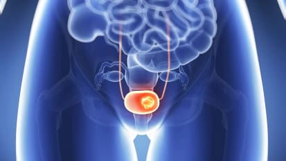Muscle Invasive Bladder Cancer