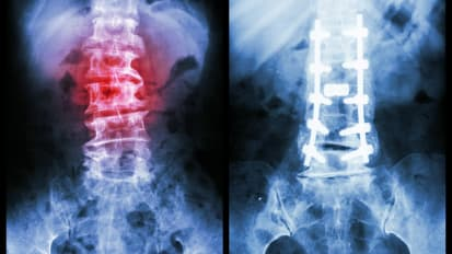 Awake Spinal Surgery Treatment Options