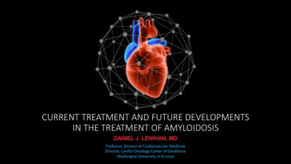 Current Treatment and Future Developments in the Treatment of Amyloidosis