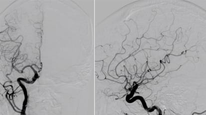 Brain Aneurysms Update | Causes and Risk Factors