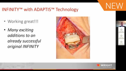 INFINITY™ with ADAPTIS™ Technology with Dr. Robert Anderson and Dr. W. Hodges Davis [AP-014201A]