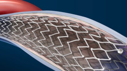 Optimize Venous Stenting Outcomes
