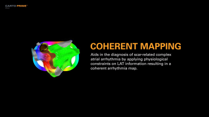 Carto Prime Coherent Mapping Video