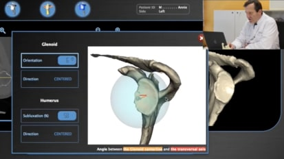 BLUEPRINT™ Tutorial using AEQUALIS™ PERFORM™ with Gilles Walch, MD [CAW-0578]