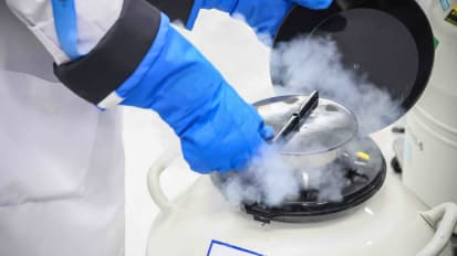 Elective Egg Freezing