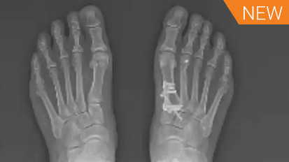 LapiFuse™: Finding a Better Way to Bunion Correction Case Review with Dr. Jeremy McCormick [AP-013825A]