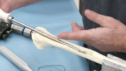 Humeral Osteotomy Technique [CAW-9273]