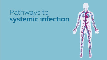 Pathways to systemic infection