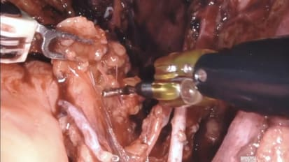 Day 1: Robot-Assisted Radical Cystoprostatectomy with Bilateral Lymph Node Dissection<br>Part 2: Pelvic Lymph Node Dissection