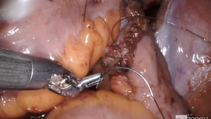 Day 1: Robot-Assisted Radical Cystoprostatectomy with Bilateral Lymph Node Dissection<br>Part 3: Neobladder ICUD