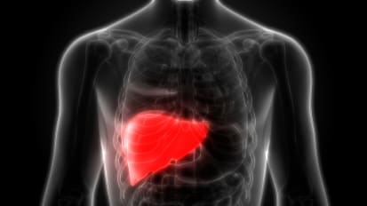 Hepatology and COVID-19: Fatty Liver Disease
