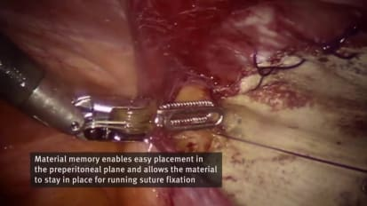 Robotic Preperitoneal Umbilical Hernia Repair