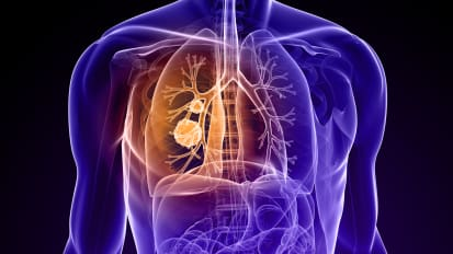 Lung Cancer Screening: The Development of Guidelines and Policy