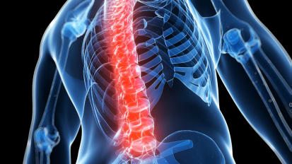Comparing Surgical Approaches to Treat Spinal Synovial Cysts