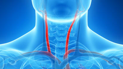 Carotid Artery Disease and Stroke: Prevention and Treatment | Q&A