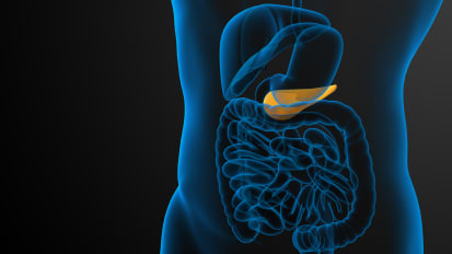 What are the Treatment Options for Pancreatitis? | Q&A