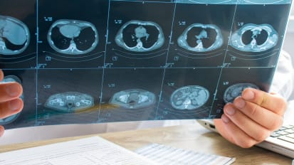 The importance of lung cancer screening