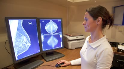 Breast Cancer Personalized Risk Assessment Education and Prevention Program