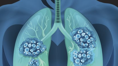 New Rule-Out Test for Lung Cancer Increases Diagnostic Precision