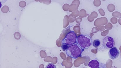 New Targets for Acute Myeloid Leukemia