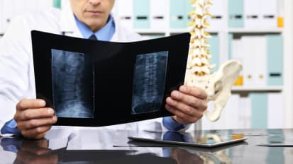 Spinal Surgical Planning