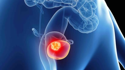 Bladder Cancer in Women - Kimmel Cancer Center Podcast Series