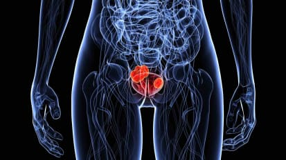 Updates in Women's Bladder Cancer