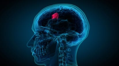 Treating Brain Tumors: Challenges & Opportunities