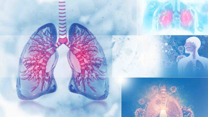 New Treatment Options for Lung Cancer - Kimmel Cancer Center Podcast Series