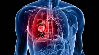 Advances in Lung Sparing Surgery