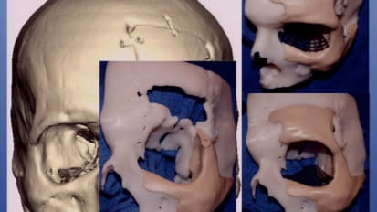 Current State of the Art Surgical Techniques in Craniofacial Reconstruction