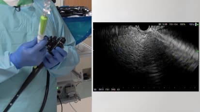 EUS-Guided Liver Biopsy Technique and Case Study by Harshit Khara, M.D., Danville, PA