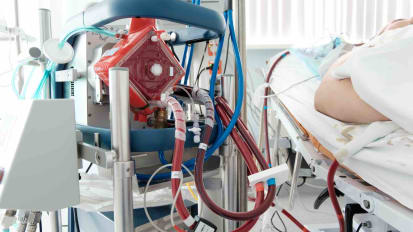 Case Presentation: Utilizing ECMO in Cardiogenic Shock