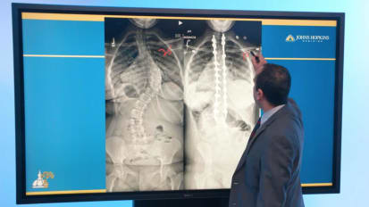 Adolescent Idiopathic Scoliosis Case Presentation for Orthopaedic Providers
