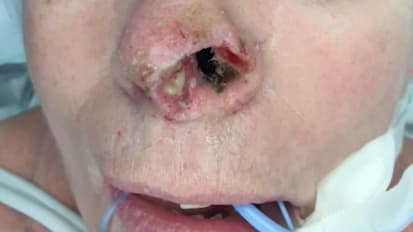 Complex Nasal Reconstruction for Merkel Cell Carcinoma
