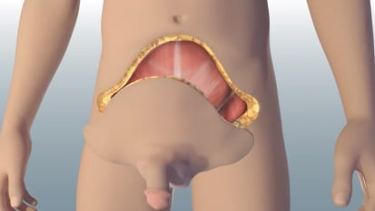 World's First Total Penile and Scrotum Transplant
