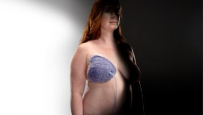Incision and Surrounding Soft Tissue Management: Enhancing the Care Regimen in Breast Surgery