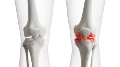 Knee Osteoarthritis Clinical Trial