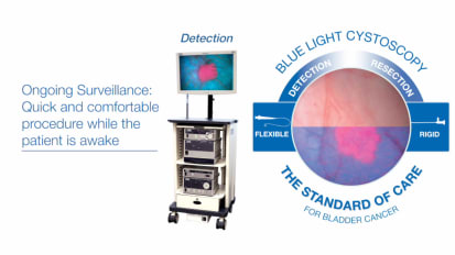 Using KARL STORZ Blue Light Cystoscopy with Cysview