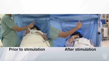 Deep brain stimulation: Precision using segmented leads