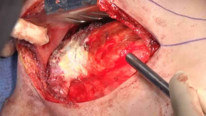 Minimally invasive approach to Pancoast tumor using 3D printing
