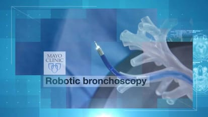 Robotic bronchoscopy