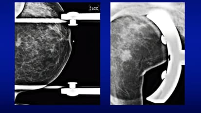 Mammography 101
