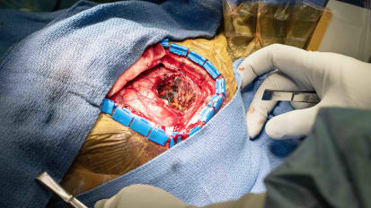 Awake Craniotomy and Tumor Resection