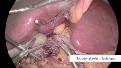 Duodenal Switch Procedure Technique and Variations